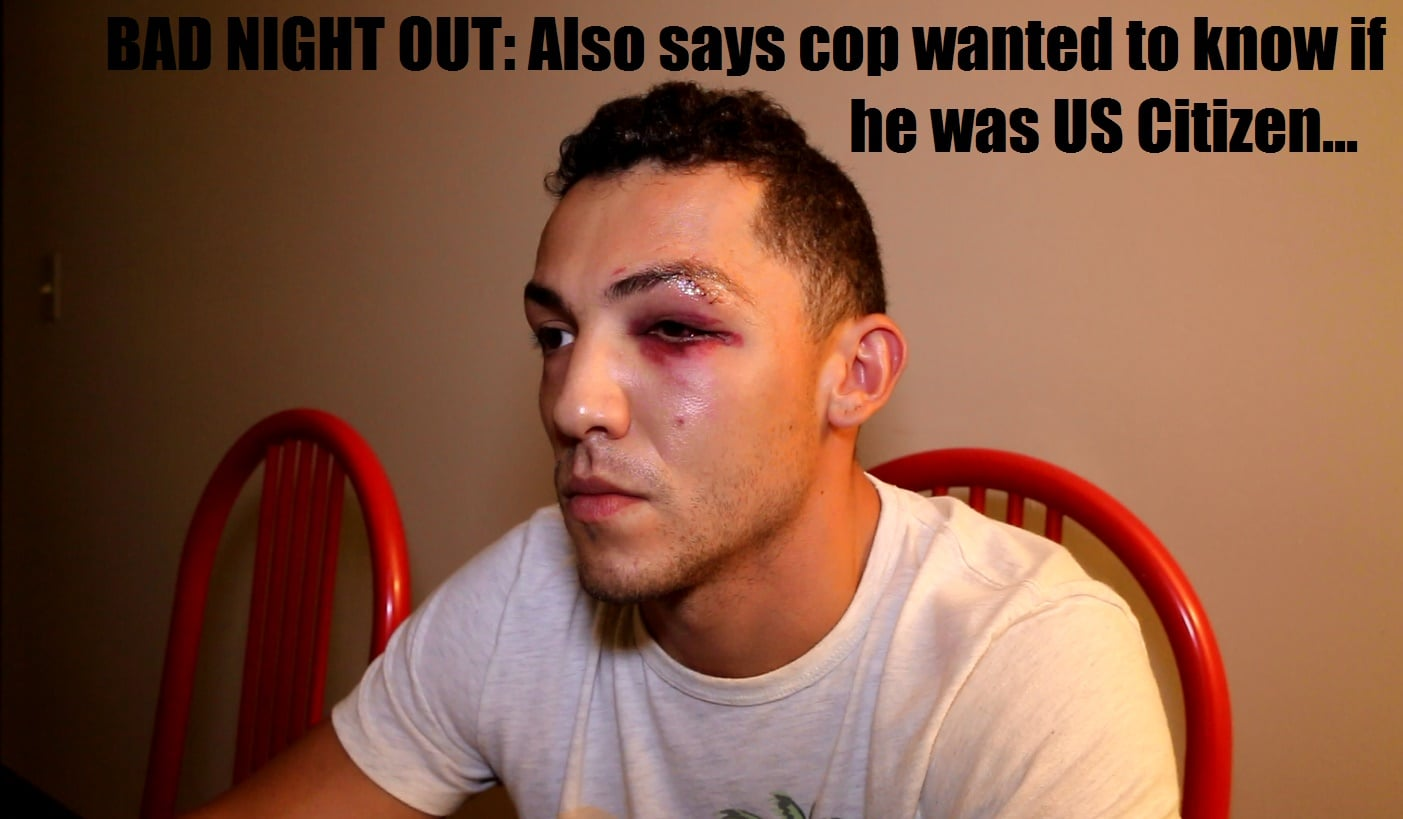 HN VIDEO: Assault victim alleges bouncer broke his face… his friend got worse… airlifted in a coma…
